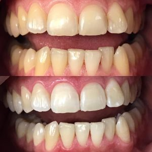 sbiecamente denti